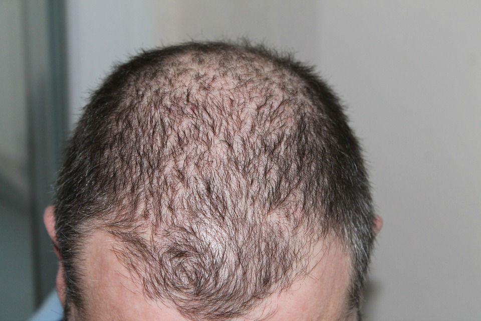 implants cheveux